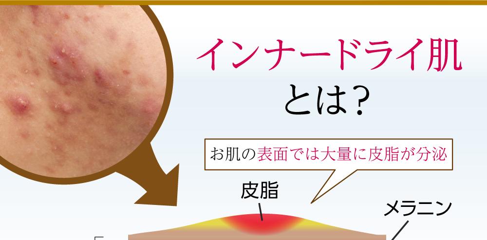 インナードライ肌とは? お肌の表面では大量に皮脂が分泌