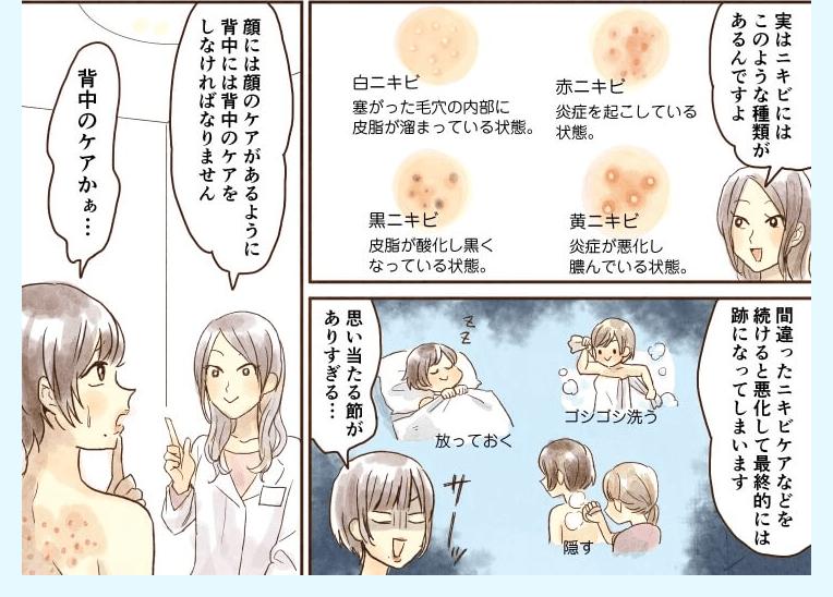 タレントでも悩む背中ニキビのお話の漫画2