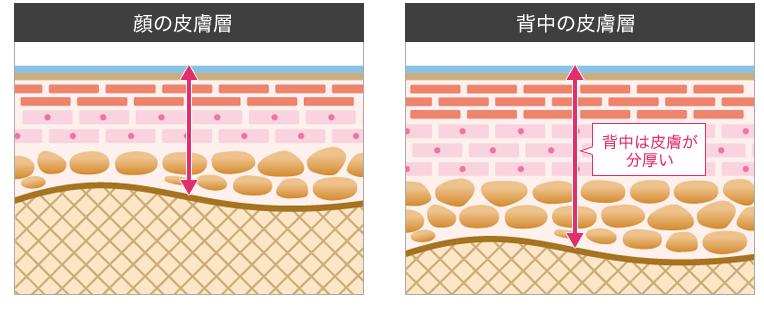 顔の皮膚層と背中の皮膚層の比較画像